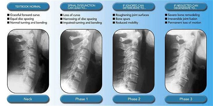 Chiropractor In Toms River Spinal Degeneration In Toms